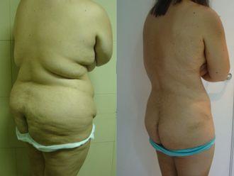 Liposucción-609444