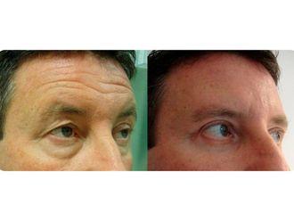 Cirugía estética-609465