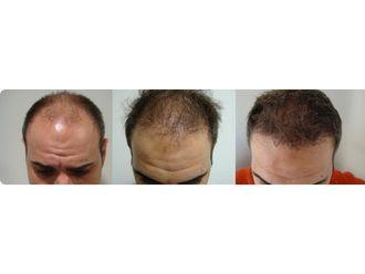 Dermatología-609470