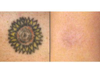 Eliminación de tatuajes - 632185