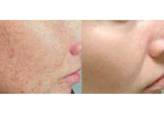 Corrección cicatrices-632186