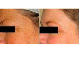 Rejuvenecimiento facial-632187