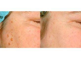 Dermatología-632189