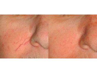 Tratamiento varices-632191