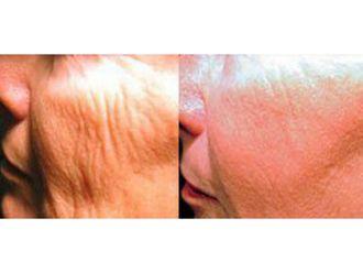 Rejuvenecimiento facial-632197