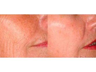 Rejuvenecimiento facial-632198