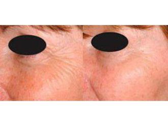 Rejuvenecimiento facial-632199