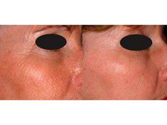 Rejuvenecimiento facial-632200