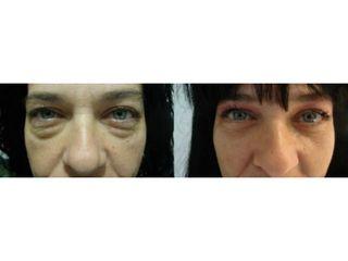blefaroplastia-parpados-bolsas-en-los-ojos-3