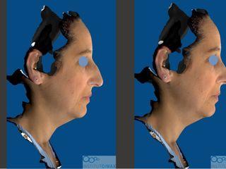 Simulación rinoplastia