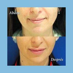 Aumento de labios - Clínica Nexus
