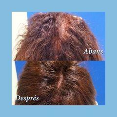 Tratamiento capilar - Clínica Nexus