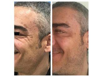 Rejuvenecimiento facial-634588