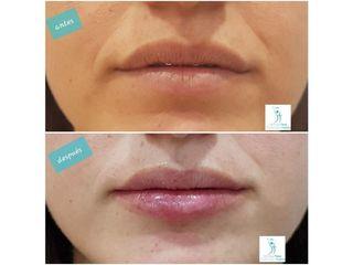 Antes y después Hidratación de labios