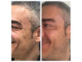 Antes y después Bótox  - Clínica Fama