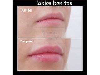 Antes y después Aumento de labios - Clínica Fama