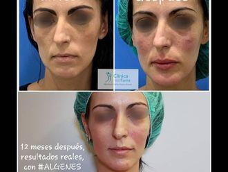Rejuvenecimiento facial-786046