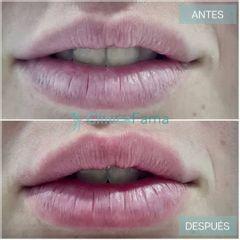 Aumento de labios - Clínica Fama
