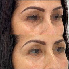 Eliminación de ojeras - Clínica Fama