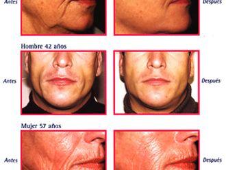 Rejuvenecimiento facial-263453