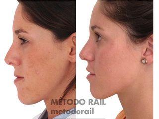 Antes y después tratamiento antimanchas
