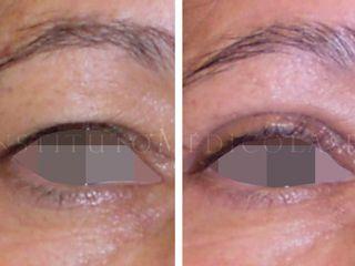 Blefaroplastia con láser, antes y después