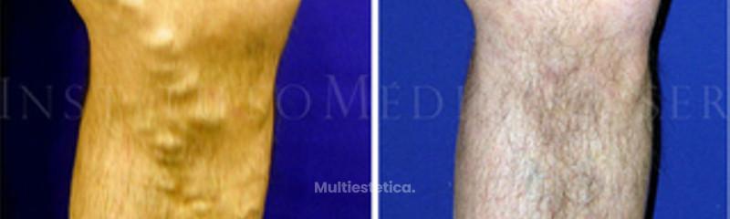 Varices graves (tronculares), antes y después del tratamiento con Láser Endovenoso