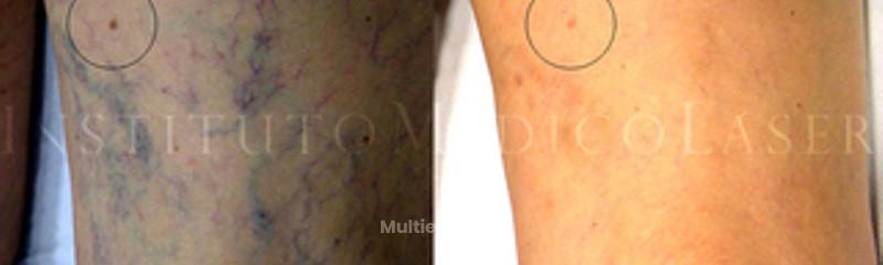 Antes y después de la Terapia Fotodinámica de Varices
