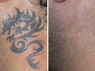 Eliminar tatuajes con láser (Antes y después)