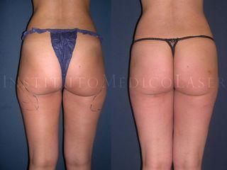 Lipoláser (Liposucción por Láser): Antes y después