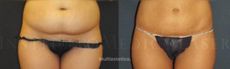 liposuccion-abdomen.jpg