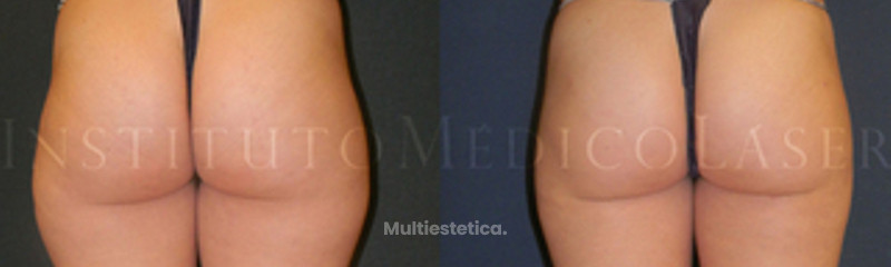 Antes y después Liposucción láser