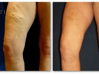 Varices tronculares (varices graves)