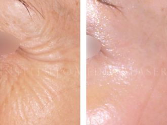 Eliminación arrugas - 624887