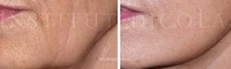 Lifting, antes y después
