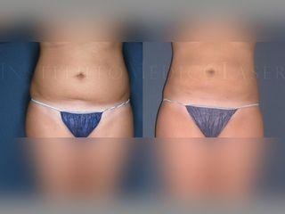 lipolaser abdomen