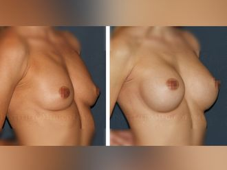 Aumento senos - 630432