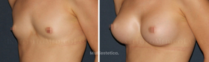 mamoplastia-antes-despues