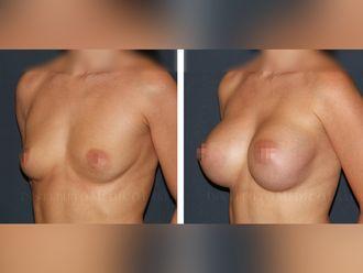 Aumento senos - 630526