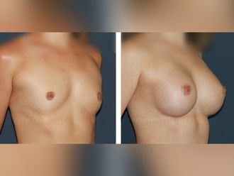 Aumento senos - 630527