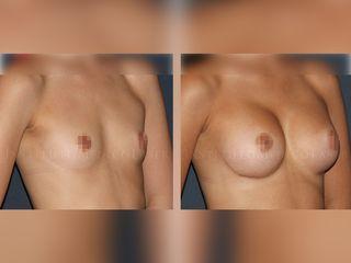Aumento de senos, antes y después