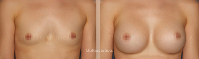 Antes y después del aumento de senos