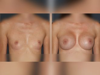 Aumento senos - 631880