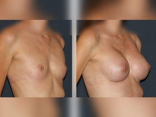 Antes y después del aumento de pecho