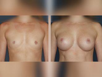 Aumento senos - 631882