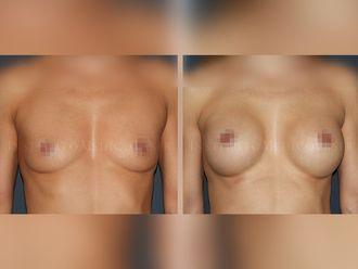 Aumento senos - 631883
