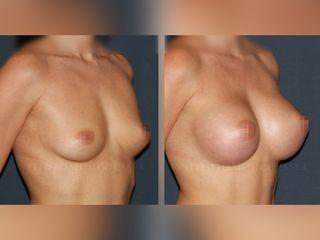 Mamoplastia de aumento, antes y después