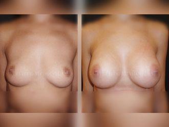 Aumento senos - 631885