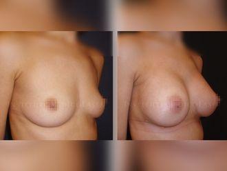 Aumento senos - 631886