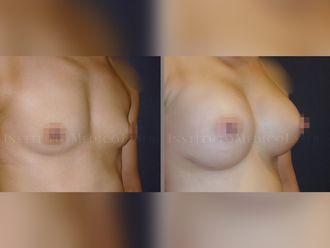 Aumento senos - 631888